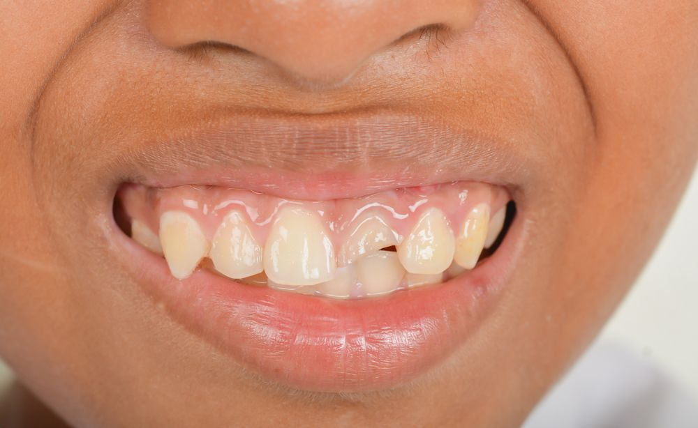 How Dental Crowns Work for a Broken Tooth