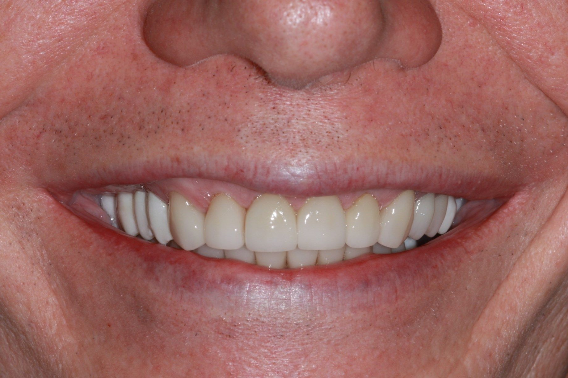After Dental smile rehabilitation