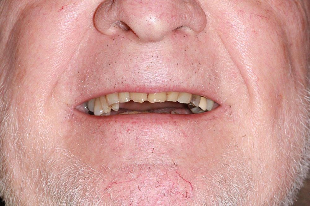 Before dental implants