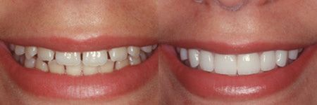 Invisalign in vero beach FL