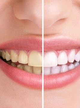 Teeth Whitening in vero beach