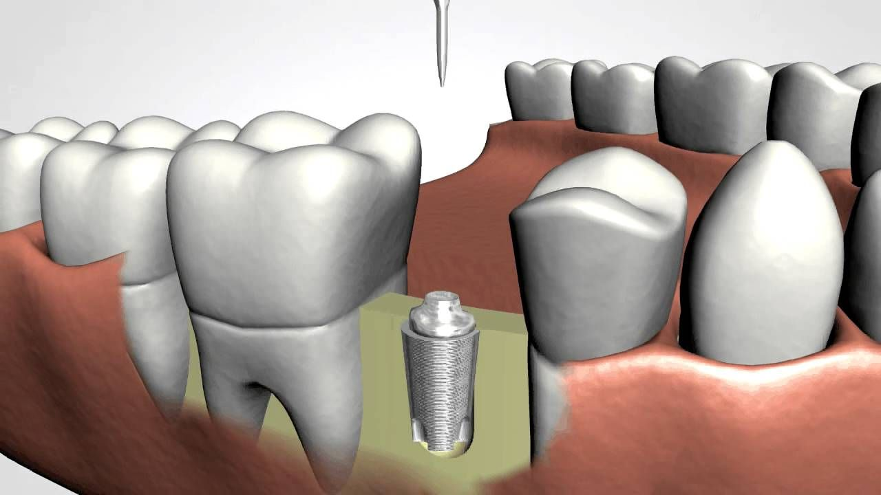 Emergency tooth extraction in Vero beach