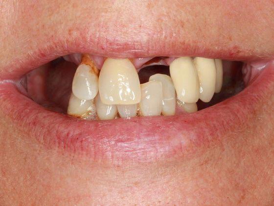 multiple missing teeth