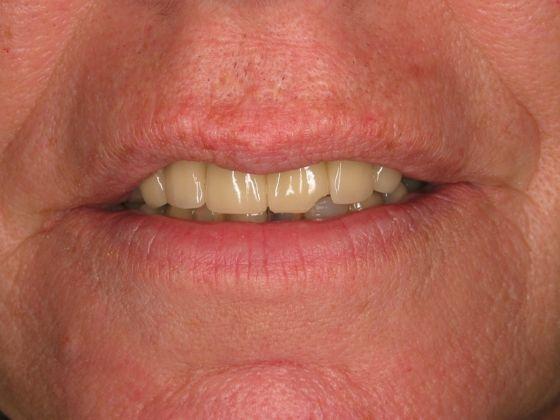 before dental implant man