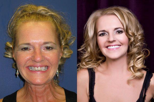full teeth reconstruction results