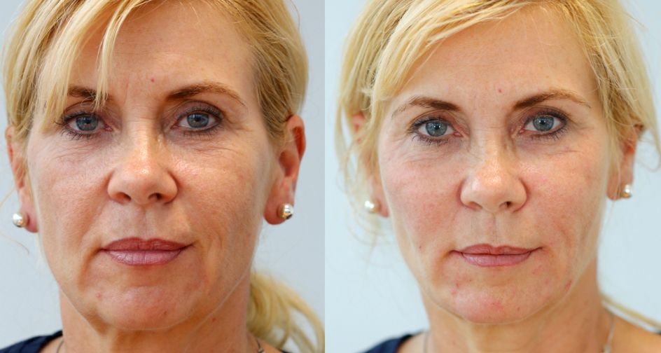 3D Non-Surgical Vector Facelift Before & After