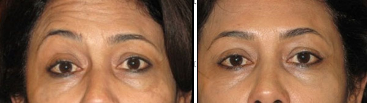 Nonsurgical Brow Lift with Botox
