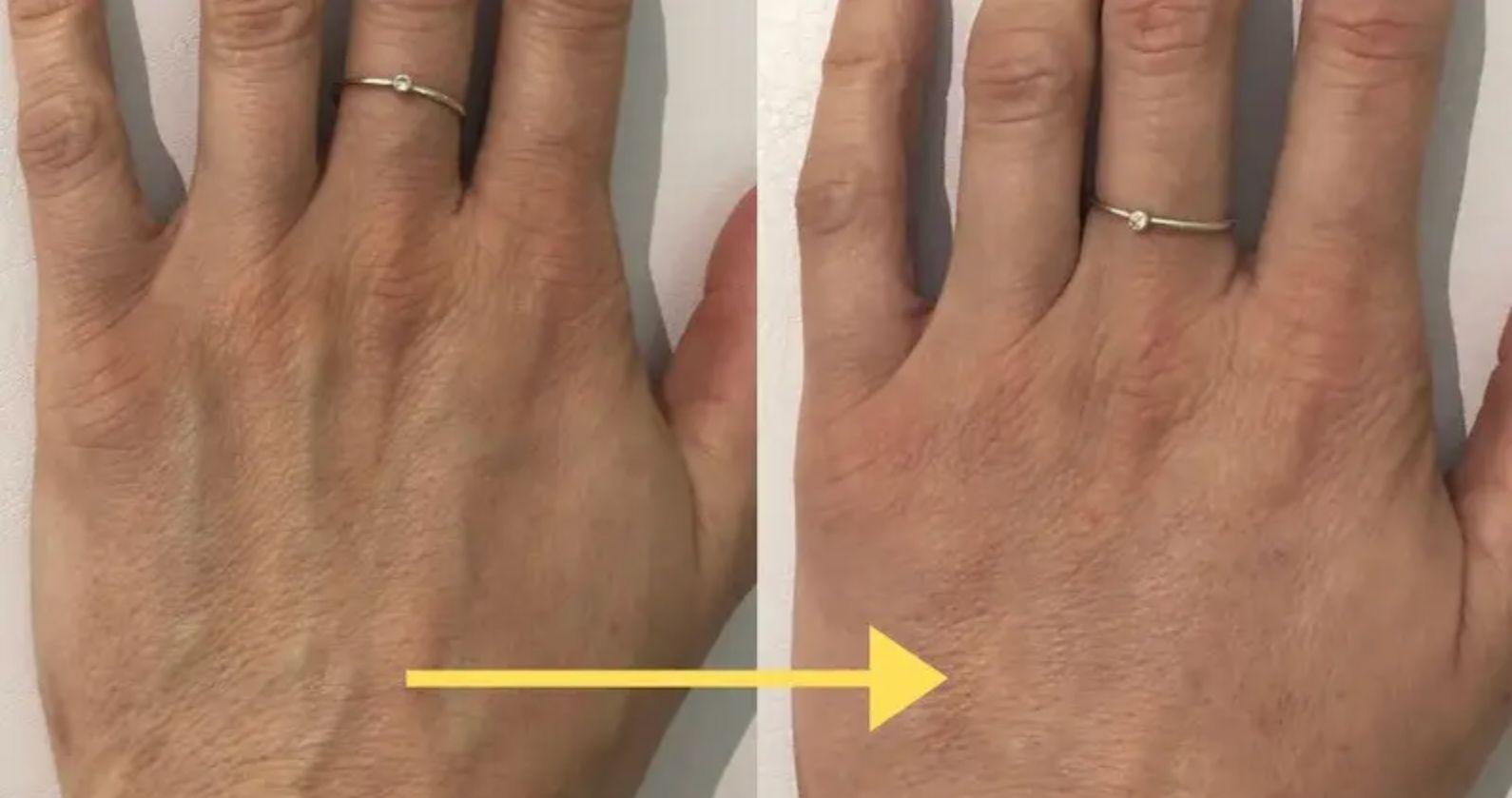Dermal Fillers for Hand Rejuvenation
