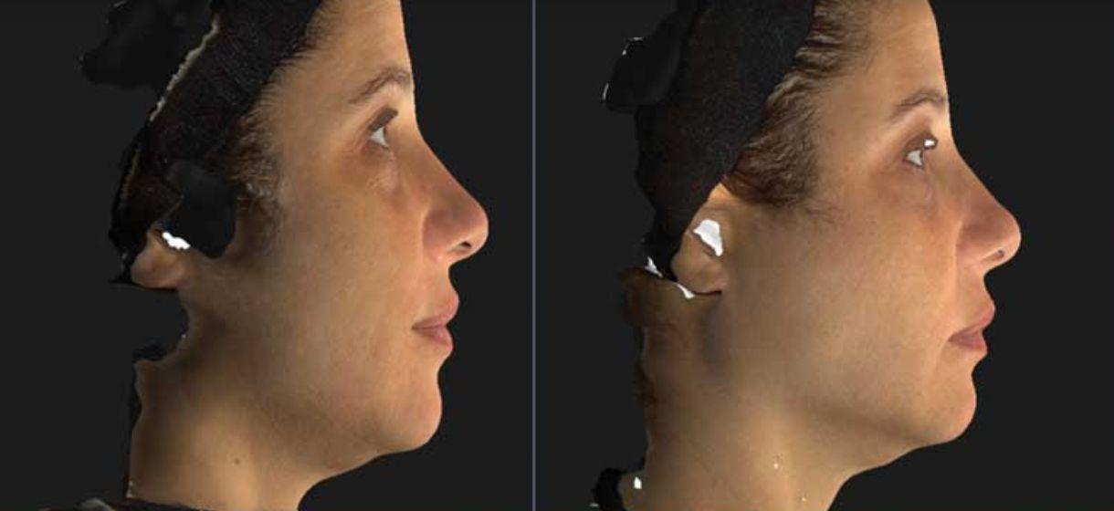 Botox Nefertiti Lift