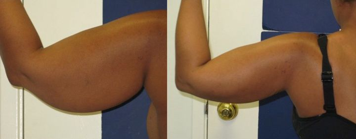 Arms LipoBefore & After