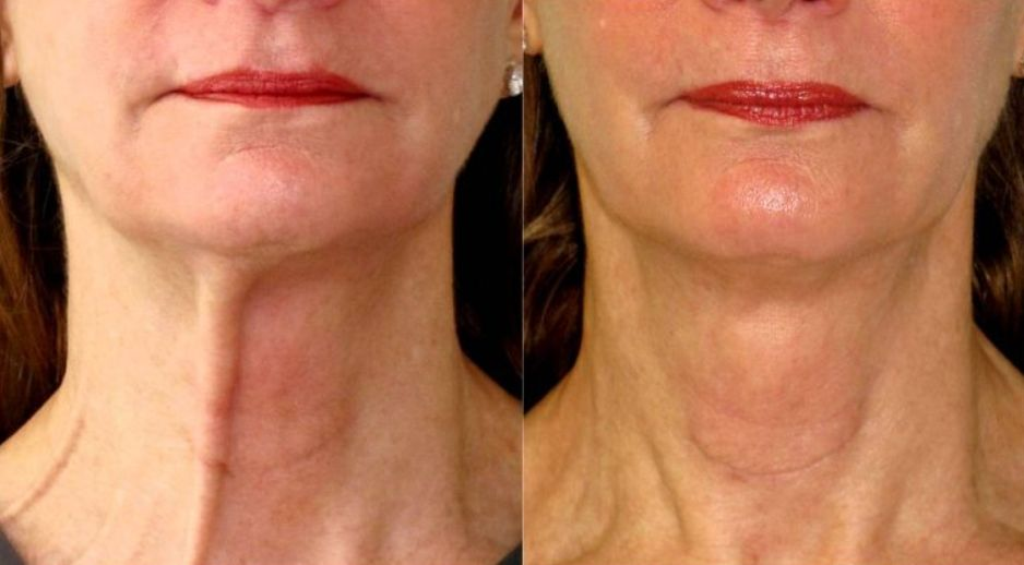 Botox for Turkey Neck and Neck Bands