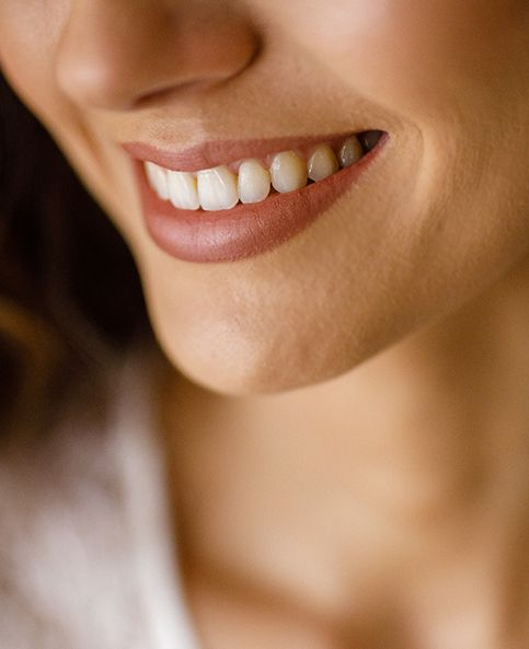 Non-Surgical Smile Lift