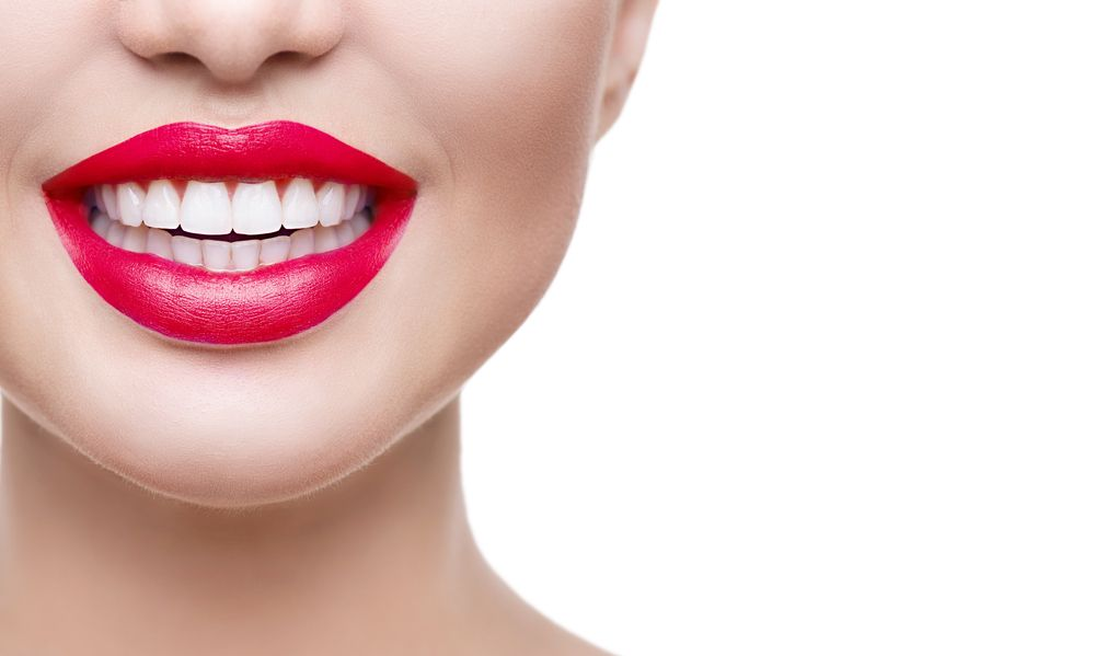 What You Should Know Before Getting Veneers