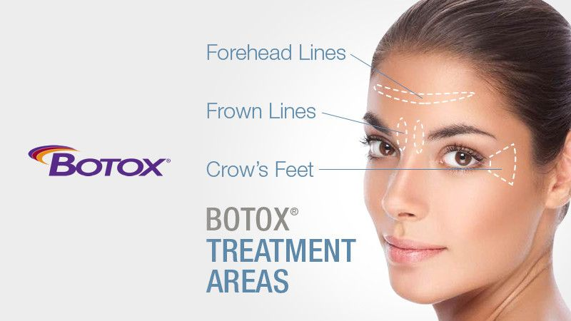 Botox in Boca Raton FL - Cosmetic Injectable | Optimization
