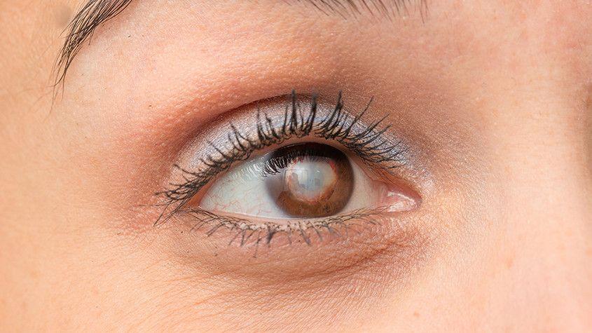 Cataract Co-Management