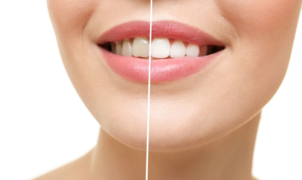teeth before and after cosmetic dentistry