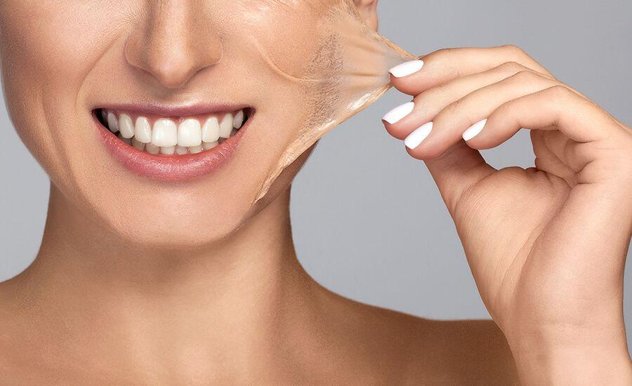 VI Chemical Peels - 5 Custom Peels for All Skin Types