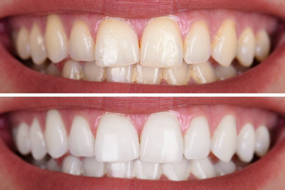 Close-up Of A Smiling Woman's Teeth Before And After Whitening​​​​​​​