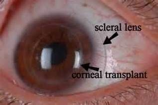 specialty contacts