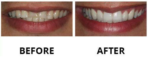 dental-veneers-1
