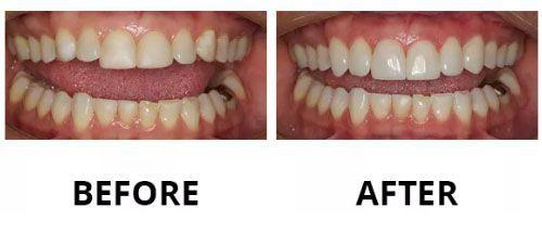 dental-veneers-2