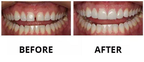 dental-veneers-3