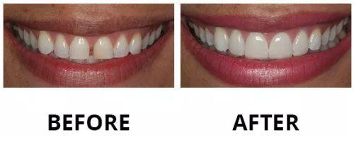 dental-veneers-4