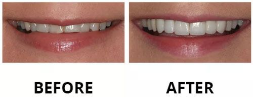 dental-veneers-5