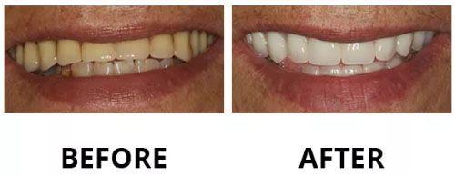 dental-veneers-6