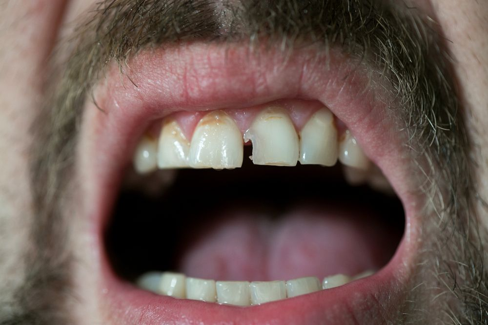 Problems from a Chipped Tooth
