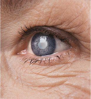 Premium Lens Options For Cataract Surgery