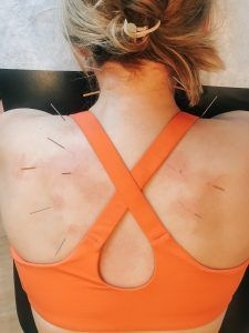 Weighing out the options: Dry Needling vs. Acupuncture