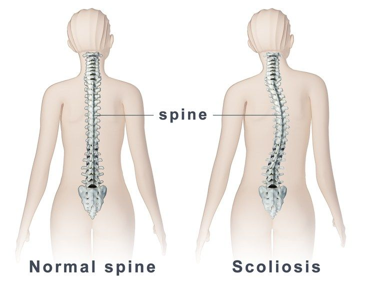 Posture, Scoliosis and Chiropractic
