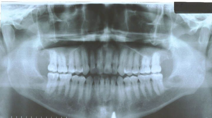 After surgery performed in 2009 with bone graft with PRP (30 years old patient)