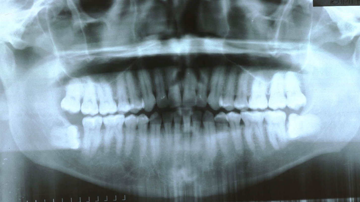 Before surgery performed in 2009 with bone graft with PRP (30 years old patient)