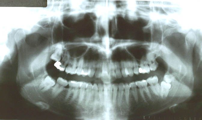 Before surgery(3 mos) performed in 2001 with bone graft with PRP (32 years old patient)