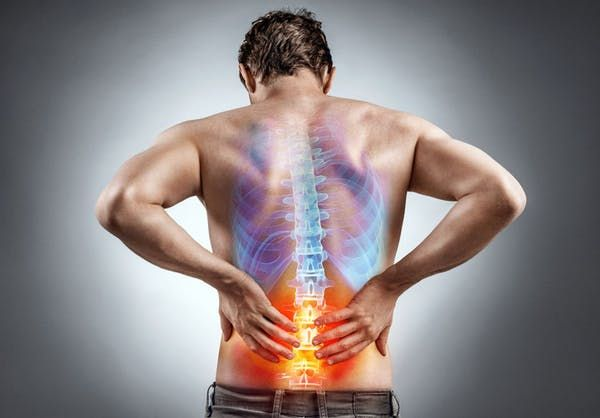 Low Back Pain Becomes Chronic More Often Than Previously Thought