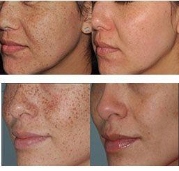 Facial rejuvenation procedure