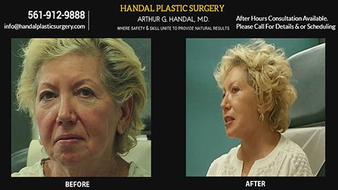before and after procedure