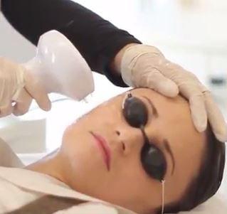 Woman under Lumecca IPL Laser Skin Rejuvenation