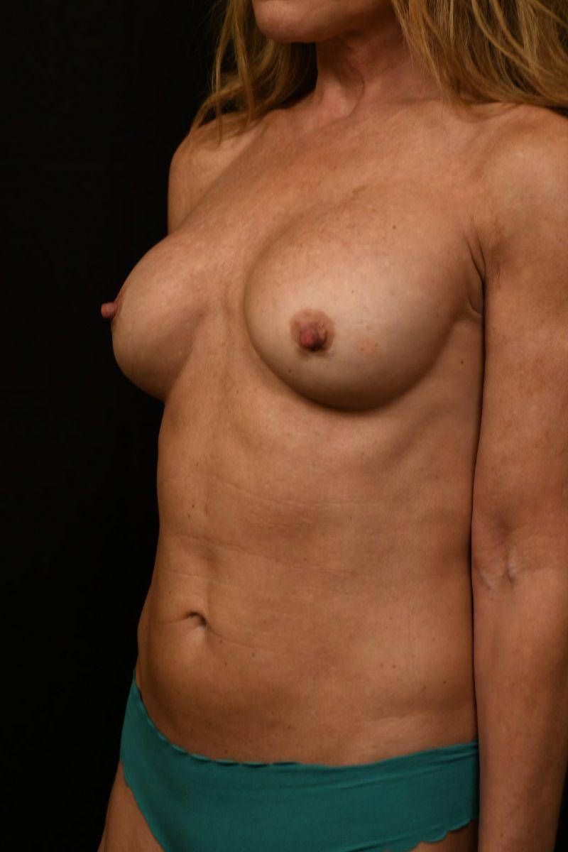 patients at Change Plastic Surgery