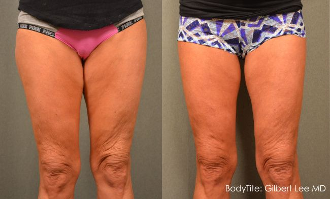 before and after scarless thigh lift