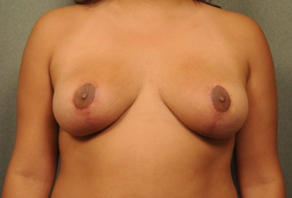 smaller breasts after