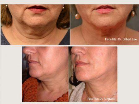 Scarless Skin Tightening in San Diego | Changes Plastic Surgery