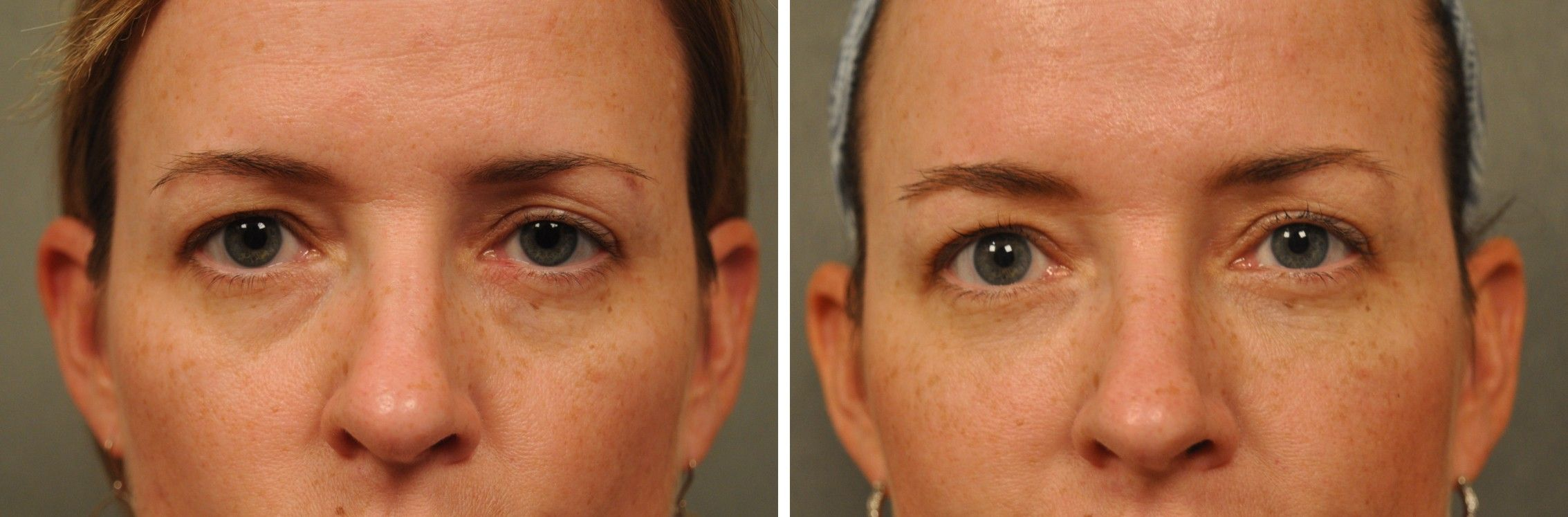 Tear Trough Surgery - Eye Fillers in San Diego | Changes