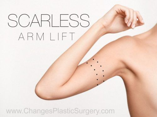 Scarless Arm lift