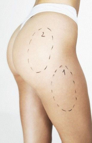 butt and thigh liposuction