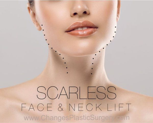 Incisionless Facelift And Necklift