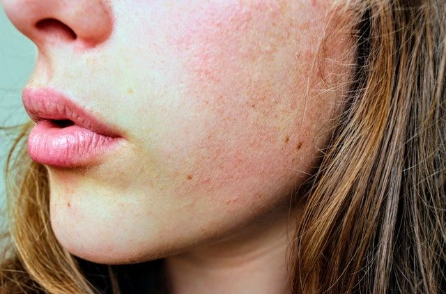 Natural Remedies for Acne and Rosacea