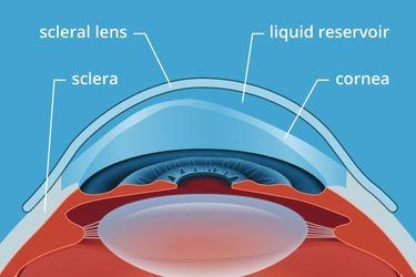 Specialty Contact Lens